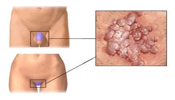 condyloma acuminata nemi szervek kezelése