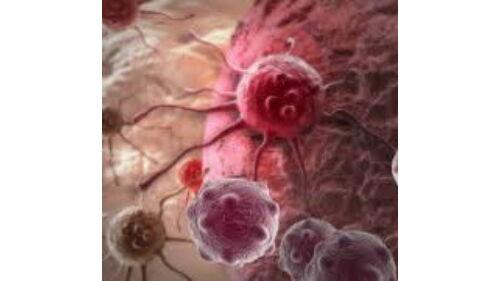 hasnyálmirigy biliáris rák