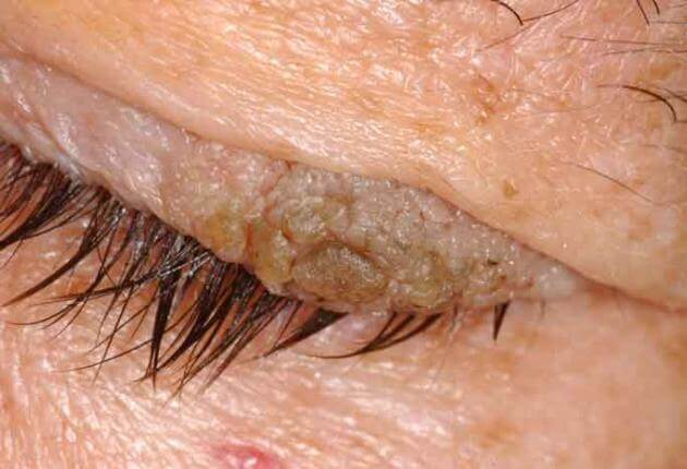 Rosszindulatú papilloma