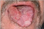 humán papillomavírus pozitív laphámrák