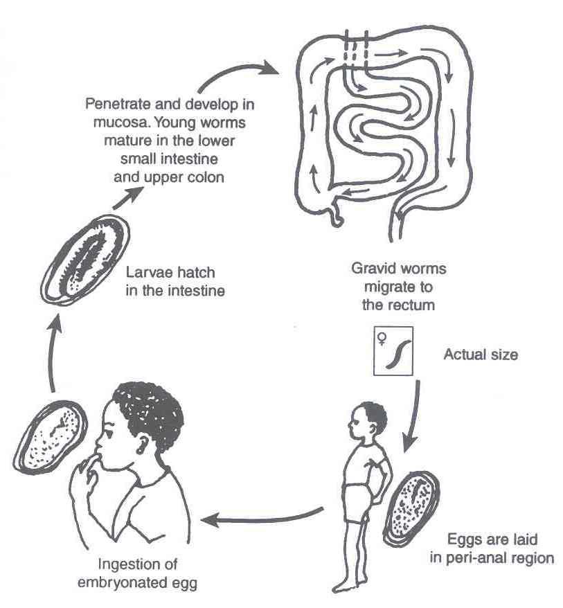 Enterobiosis szuszpenzió Mik azok a bélférgek?