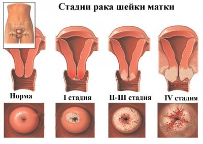 az emberi papillomavírus áthalad