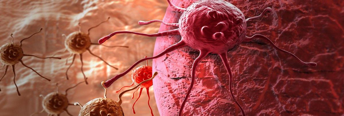 Precíziós onkológia a vastagbélrák kezelésében