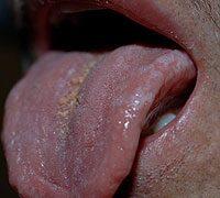 férgek elleni gyógyszerek az emberek megelőzésére széles spektrumú paraziták ellen