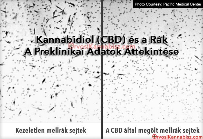 vastagbélrák patofiziológiája condyloma kezelési fórum