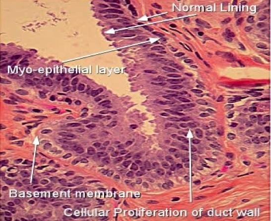 florid intraductalis papillomatosis paraziták kezelése badami