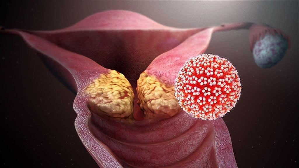 Melyek a veszélyes emberi papillomavírusok 16 és 18 típusai a nők és férfiak számára?