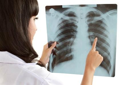 Tüdőrák - tünetek, kezelés, diagnosztika   hajtervezes.hu