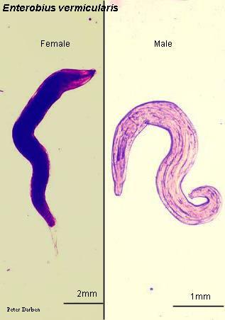 enterobiasis negatív mit jelent milyen férgek barnák