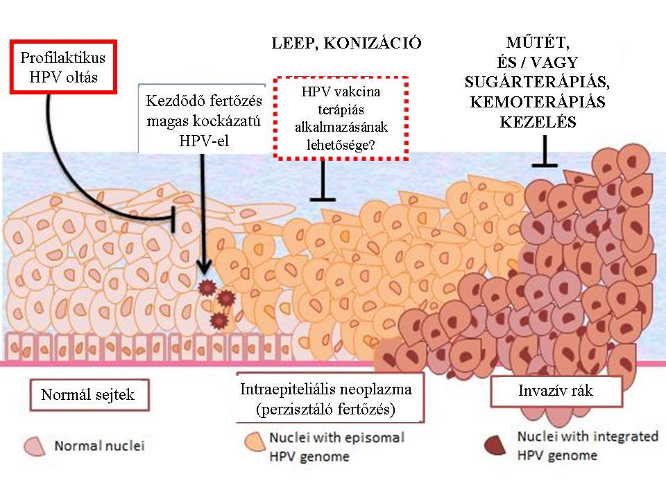 papilloma rák kezelése