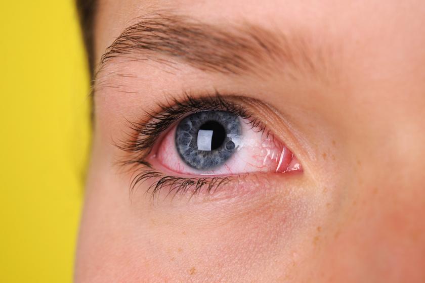 szem baktériumok
