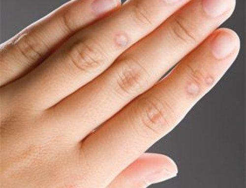 papilloma oltási vírus bologna csigaférgek kezelése